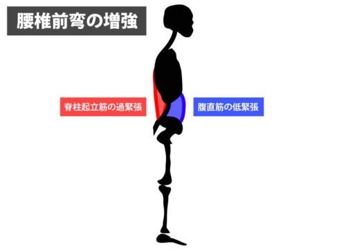 腹筋群の弱化と腰椎の過前弯