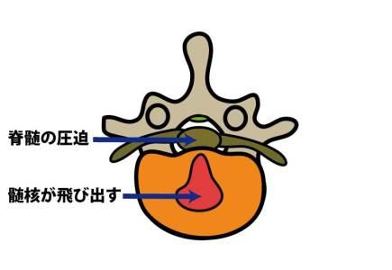 脊椎 椎間板ヘルニア 正中型