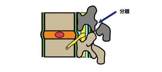 脊椎|脊椎分離症