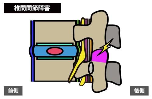 腰痛の原因|椎間関節障害