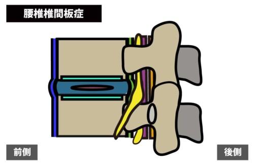 腰痛の原因|腰椎椎間板症