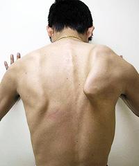 翼状肩甲骨