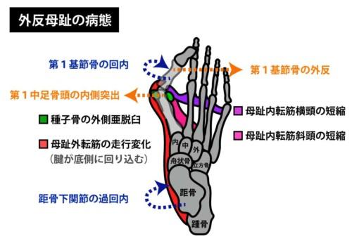 外反母趾の状態