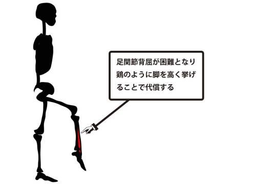 鶏歩|腓骨神経麻痺②