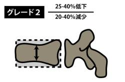 椎体骨折|SQ法|グレード2