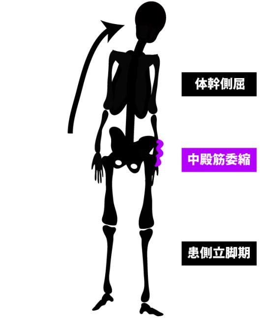 変形性股関節症|歩行姿勢|デュシェンヌ歩行