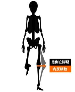 変形性膝関節症|歩行姿勢|ラテラルスラスト歩行