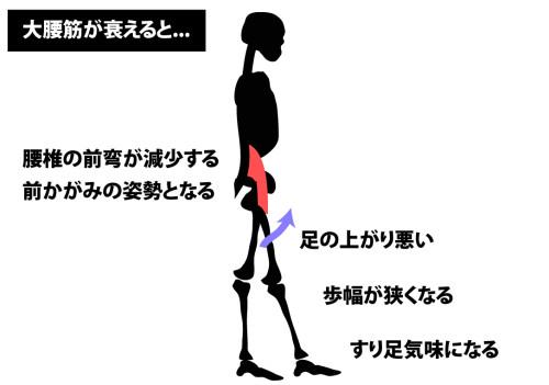 大腰筋が衰えた歩き方
