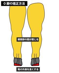 O脚とX脚の矯正方法|インソール|中敷き