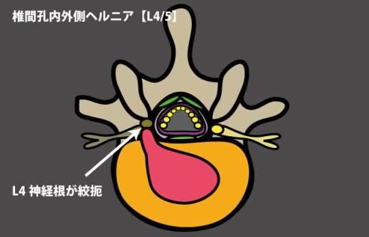 椎間孔内外側ヘルニア2