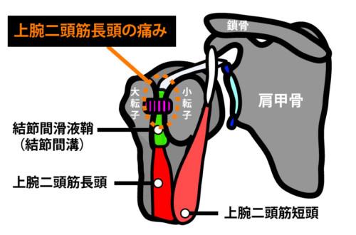 肩関節前方の痛み:上腕二頭筋長頭の損傷