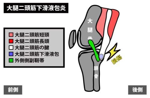 大腿二頭筋下滑液包炎1