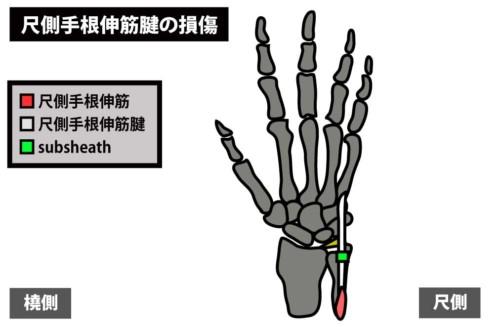 尺側手根伸筋腱の損傷