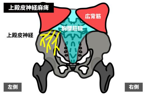 殿部の痛みの原因|上殿皮神経麻痺