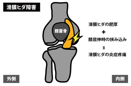 滑膜ヒダ障害:タナ障害
