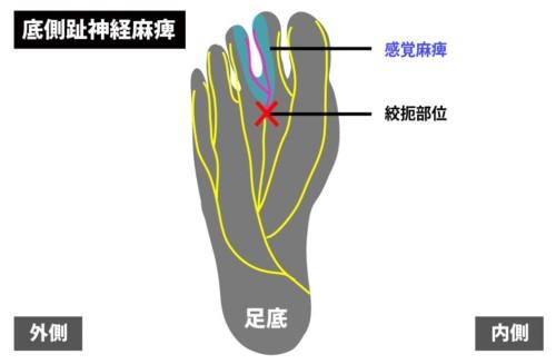 足底の痛みの原因|底側趾神経麻痺