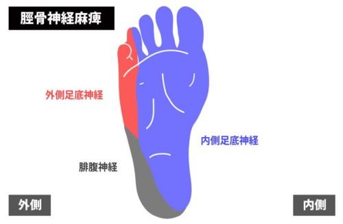 足底の痛みの原因|脛骨神経麻痺1