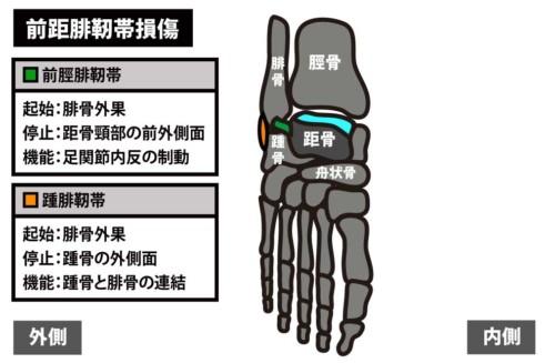 足関節前方の痛み|前距腓靭帯損傷