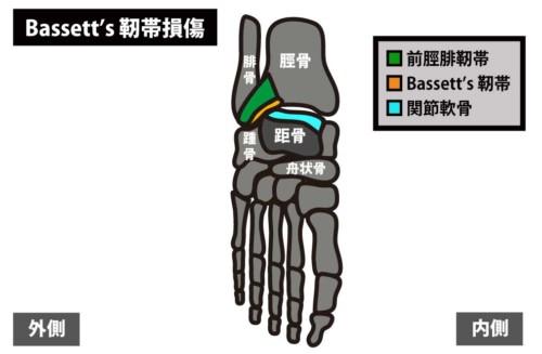 足関節前方の痛み|Bassett's靭帯損傷