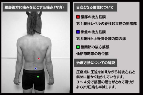 腰部後方に痛みを起こす圧痛点