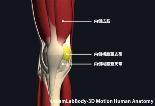 TKAの手術|内側膝蓋支帯