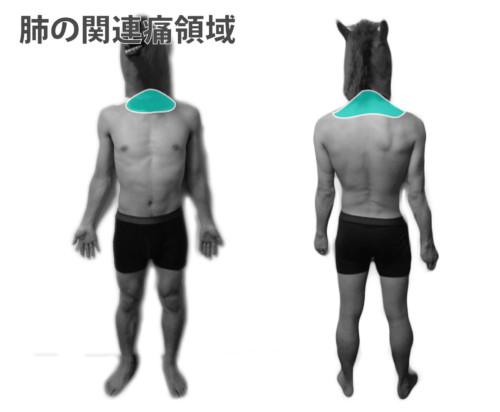肺の関連痛領域1