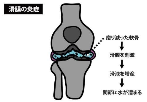 滑膜の炎症