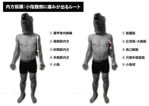 内方筋膜:小指腹側の痛み