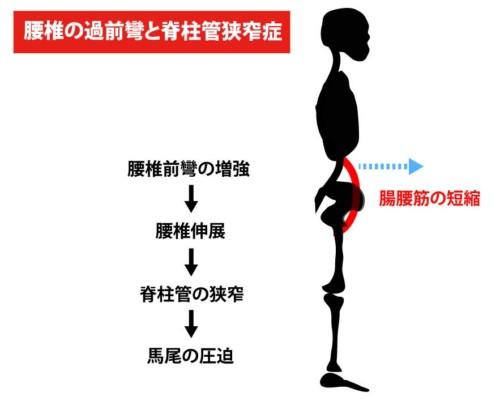 腸腰筋と腰部脊柱管狭窄症