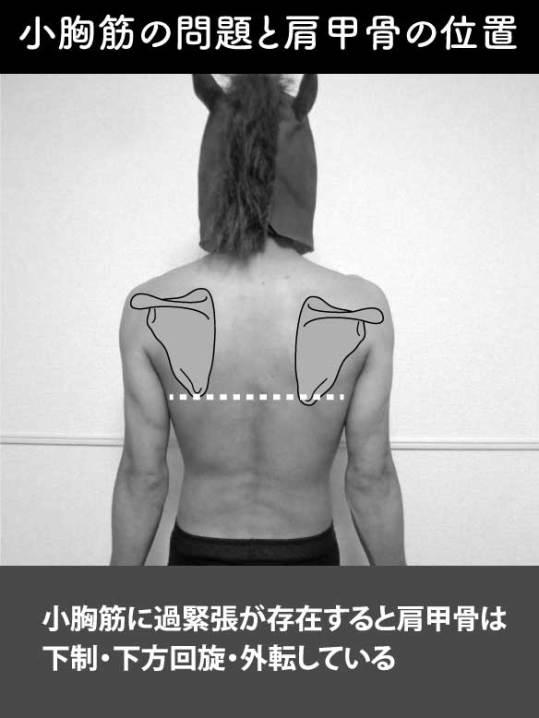 小胸筋の問題と肩甲骨の位置