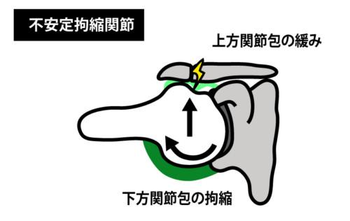 不安定拘縮関節2