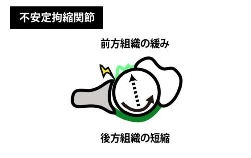 不安定拘縮関節3