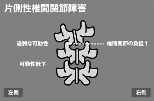 片側性椎間関節障害1
