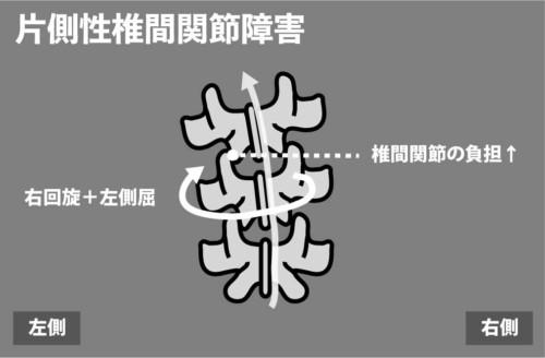 片側性椎間関節障害:体幹回旋