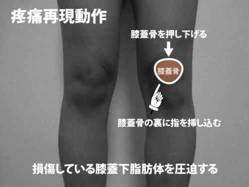 膝蓋下脂肪体の疼痛再現動作