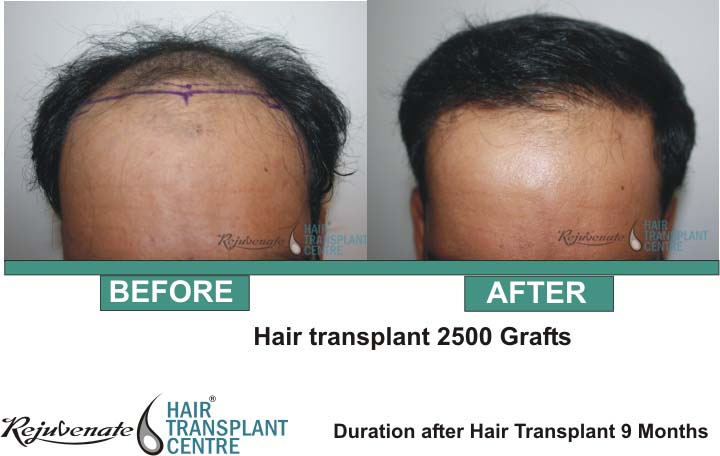 Hair Transplant 2500 Grafts