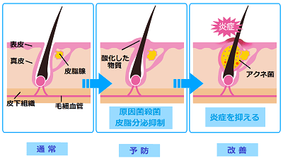 ニキビ発生のメカニズムのイラスト