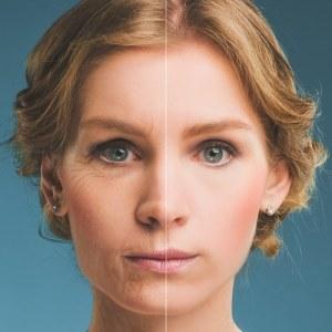laser skin removal, laser skin resurfacing, Calgary SE, Douglasdale
