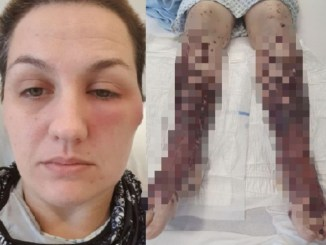 Covid Vaccine Turned Scot Woman Legs into Giant Blisters and Left her in Wheelchair