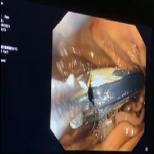 Surgeons operate on man after he swallowed Nokia 3310 phone, Surgeons operate on man after he swallowed Nokia 3310 phone, Relay Vibes
