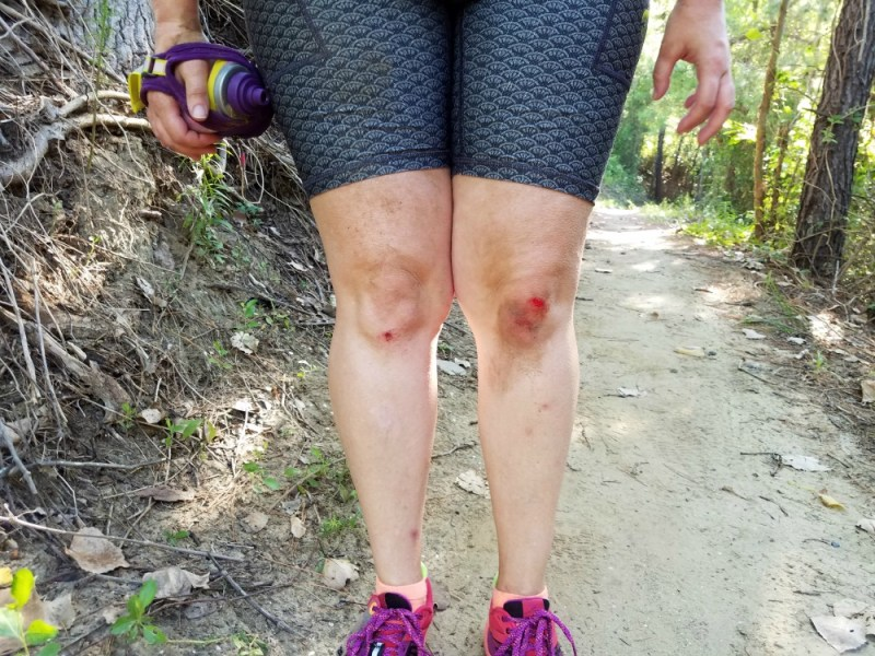 Trail Knees Scorched Trails 10K