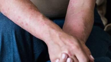 Photo of COVID-19: Descubren que el coronavirus también deja secuelas en la piel