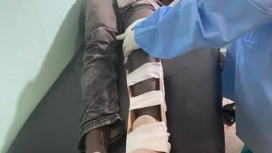 Photo of En esto momentos una persona abaleado en el hospital de villa vásquez.