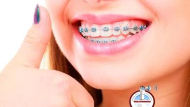 Photo of Precauciones a tomar para el sexo oral con brackets