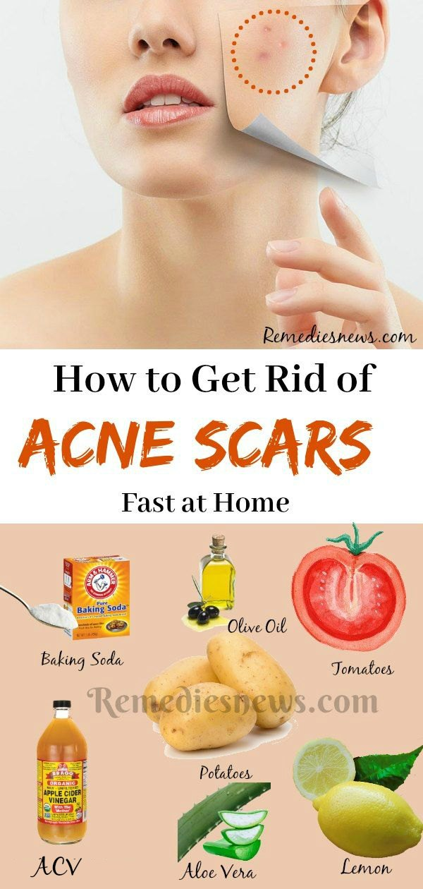 Home treatments to get rid of acne scars