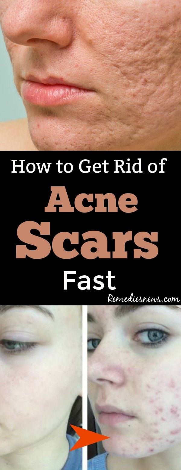 how to get rid of scne scars