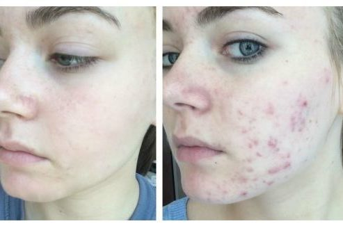 How to get rid of spots fast overnight