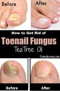 Tea tree oil Teanail fungus Before and After the Treatment