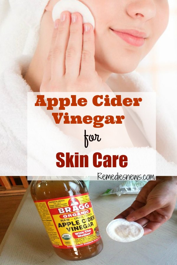 apple cider vinegar for skin care