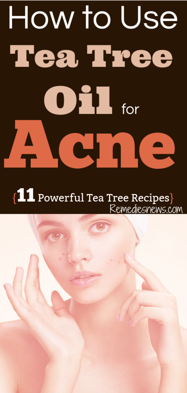 How to Use Tea Tree Oil for Acne. 11 Powerful Tea tea oil Recipes to Get Rid of Acne Fast at Home